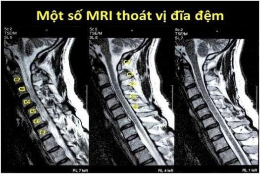 Hình ảnh MRI thoát vị đĩa đệm cột sống cổ