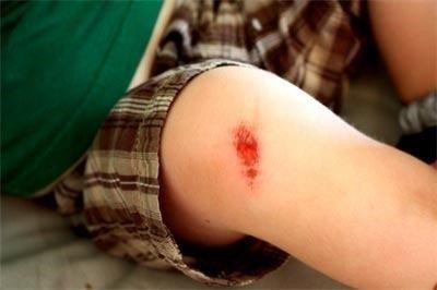 Sử dụng thuốc kháng sinh khi bị xước da