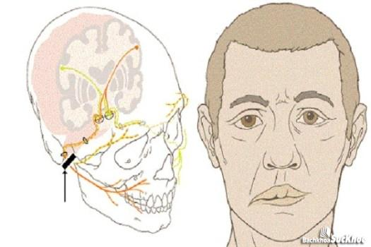 Bệnh liệt mặt trung ương