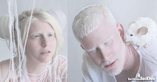 Màu tóc và da của bệnh nhân bị bệnh bạch tạng