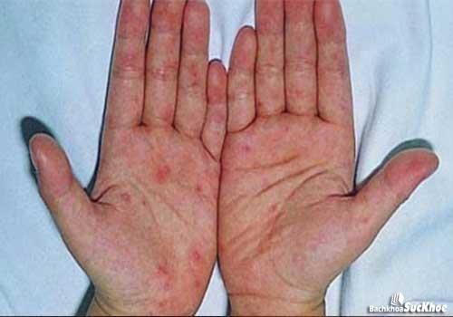 Bệnh chàm với dấu hiệu nổi mụn nước