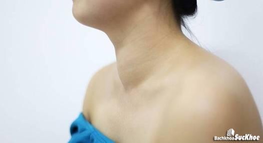 Bệnh bướu cổ là tiềm ẩn của hội chứng cường tuyến giáp