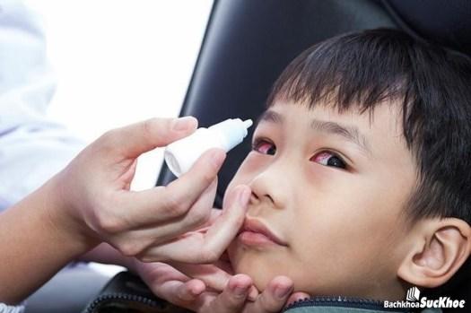 Bệnh đau mắt đỏ dễ bị lây lan, truyền nhiễm