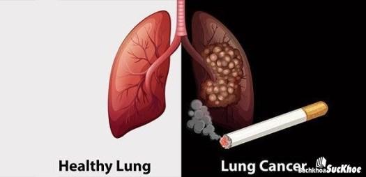 Thuốc lá gây hại tới sức khỏe của mọi người