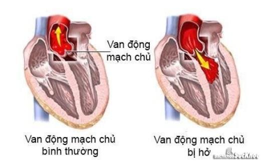 Bệnh hở van động mạch chủ