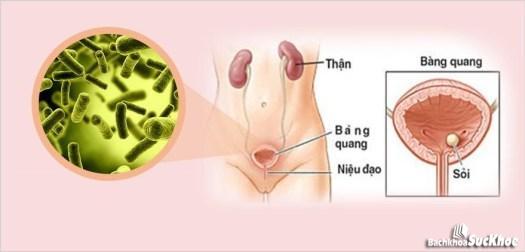 Bàng quang bị nhiễm khuẩn