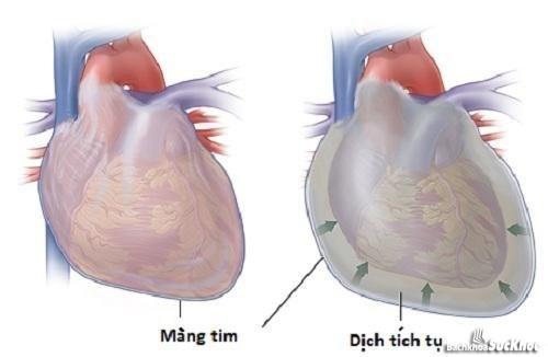 Bệnh viêm màng ngoài tim rất dễ gây độc toàn thân