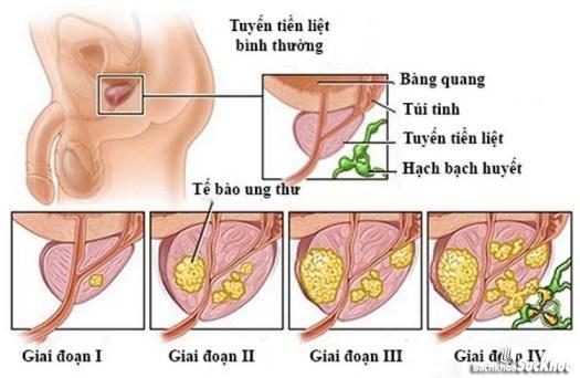 Bệnh viêm tuyến tiền liệt qua các giai đoạn
