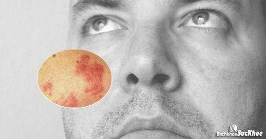 Bệnh zona hạch gối có nhiều tác động vào cuộc sống người bệnh
