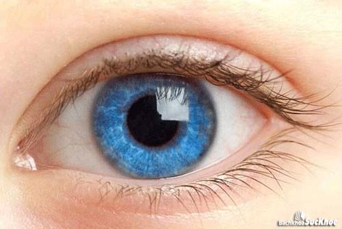 Mắt của người bị bệnh bạch tạng