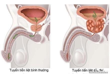 Bệnh viêm tuyến tiền liệt được chữa theo nhiều cách khác nhau