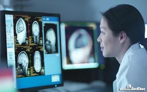 Cần đến bác sĩ ngay nếu cơ thể có biểu hiện của chấn động não
