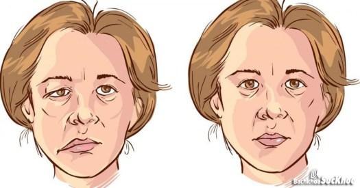 Một số cách phòng tránh bệnh liệt Bell xảy ra