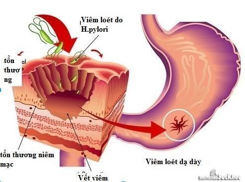 Phương pháp điều trị bệnh ung thư dạ dày