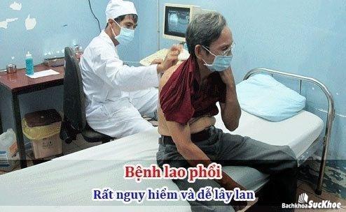 Tình trạng lao phổi ngày càng nhiều