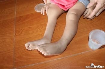 Bệnh teo cơ làm mất cân xứng cơ giữa hai chân