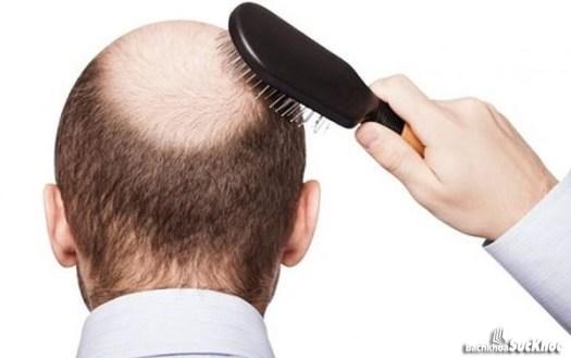 Rụng tóc là dấu hiệu rối loạn nội tiết tố thường gặp ở nam giới
